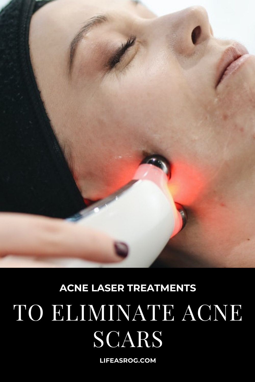 Acne Laser Treatments to Eliminate Acne Scars